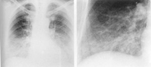 Pneumonia interstitiala